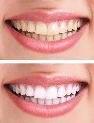 Éclaircissement dentaire Paris 15