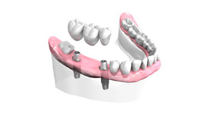Implant dentaire Paris 15